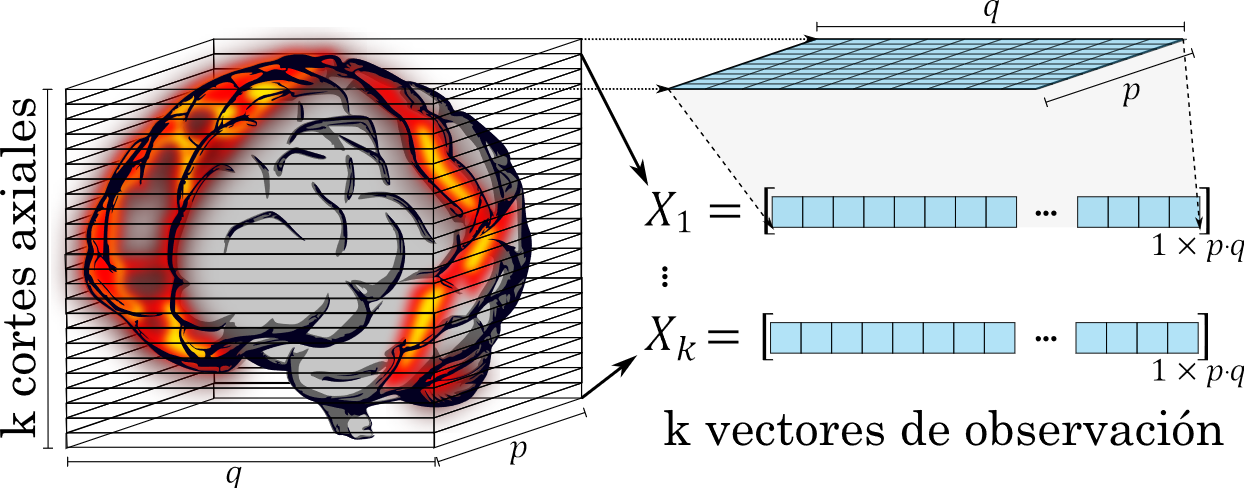 Transformación de un volumen con k cortes axiales a k vectores de observación
