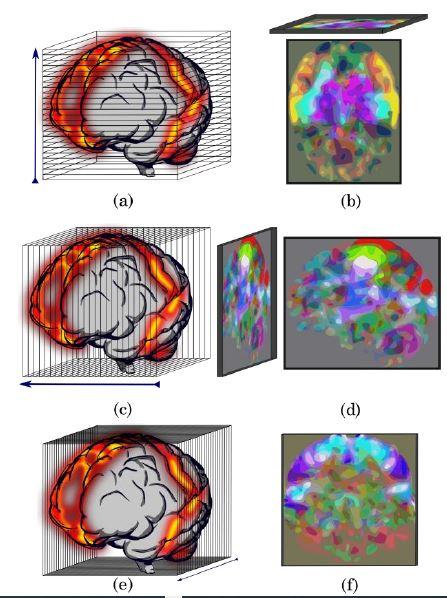 Reducción del volumen mediante análisis de componentes principales. (a) Selección de los cortes para generar la imagen axial, (b) Imagen axial obtenida de las tres componentes principales de mayor porcentaje de varianza explicada, (c) Selección de los cortes para generar la imagen sagital, (d) Imagen sagital obtenida de las tres componentes principales de mayor porcentaje de varianza explicada, (e) Selección de los cortes para generar la imagen coronal, y (f) Imagen coronal obtenida de las tres componentes principales de mayor porcentaje de varianza explicada