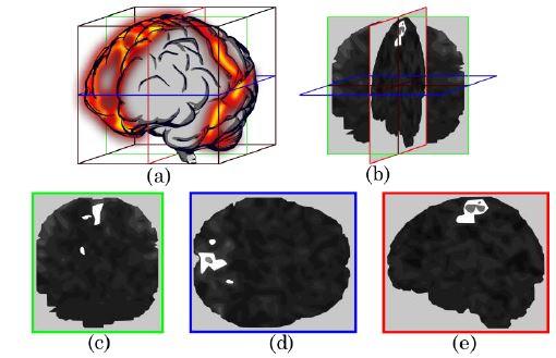 Reducción del volumen en 3 cortes. (a) Representación del mapa espacial de una componente independiente. (b) Cortes medios de la componente para generar la imagen coronal (c), axial (d) y sagital (e)